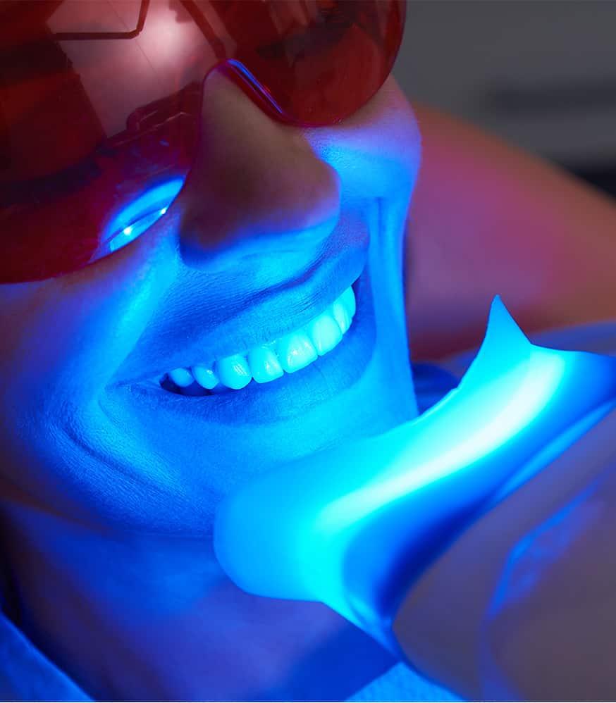 Blanchiment Dentaire - Soin Visage Amandi Nails Le Roeux Mons