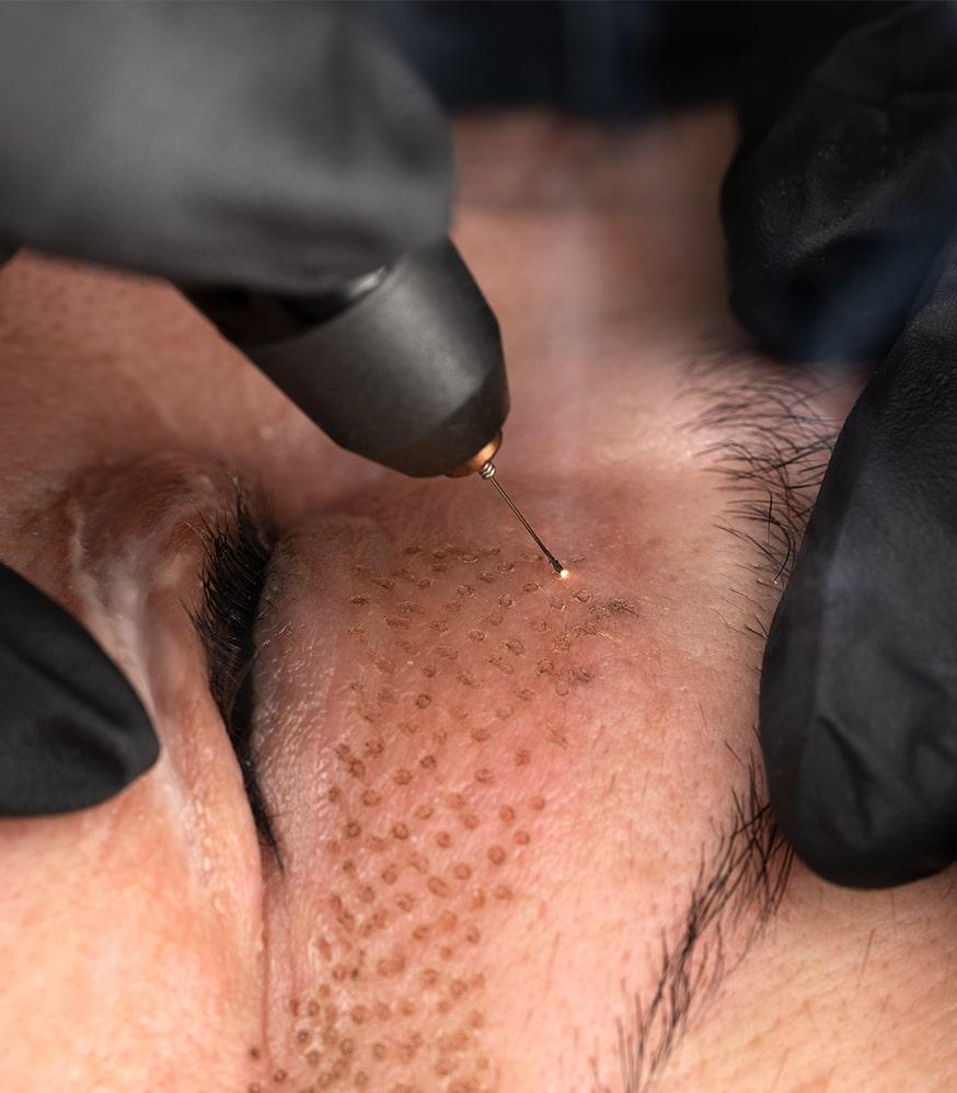 Soin du visage - Plasma Lift par Amandi Nails Le Roeulx